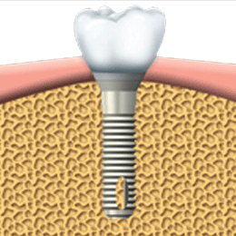 Root Canal Treatment Illustration Vector